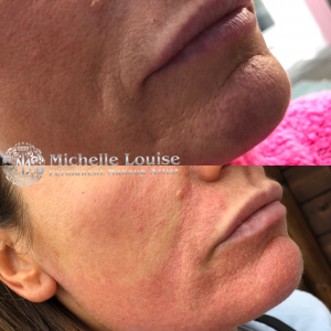 Plasma Facial - Michelle Louise
