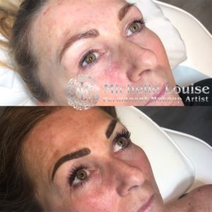 age defying skin care sidcup bexley